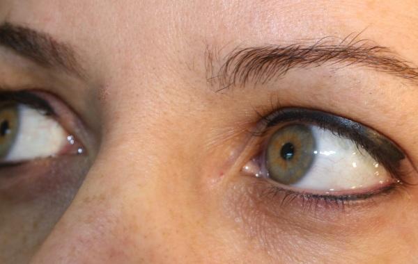 Trucco Permanente – Eyeliner