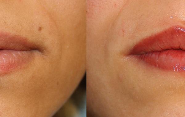 Trucco Permanente – Labbra